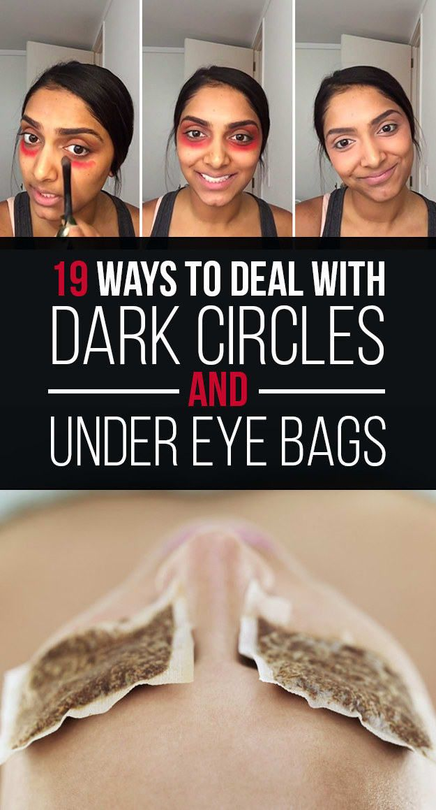 Best under eye makeup for dark circles