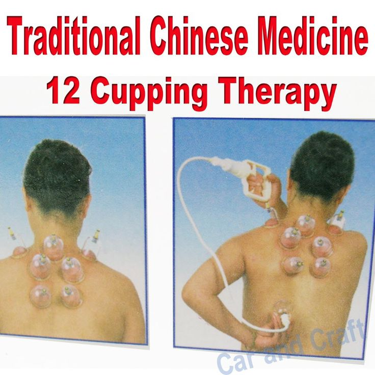Ancient Chinese Cupping: 65 Best Images About Cupping And Saunas On Pinterest