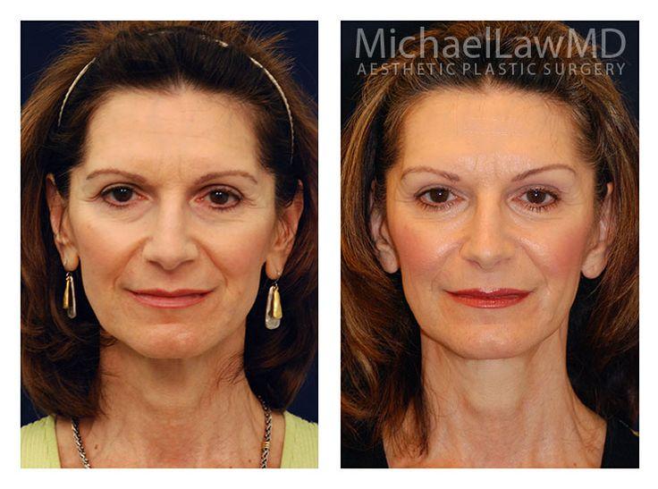 Facial plastic raleigh surgery