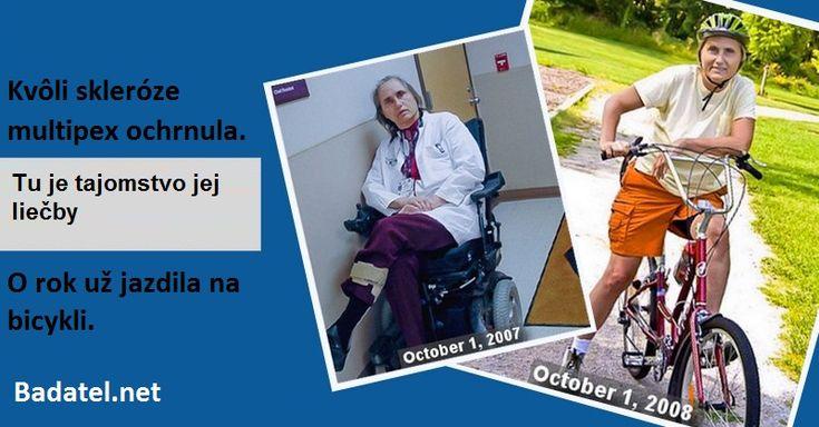 Kvôli skleróze multipex ochrnula. O rok už jazdila na bicykli. Tu je tajomstvo jej liečby