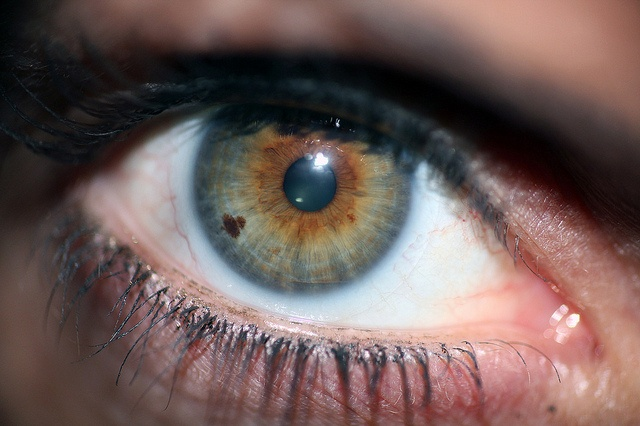 Another Amazing Heart in Iris birth mark! by kenwoodla, via Flickr