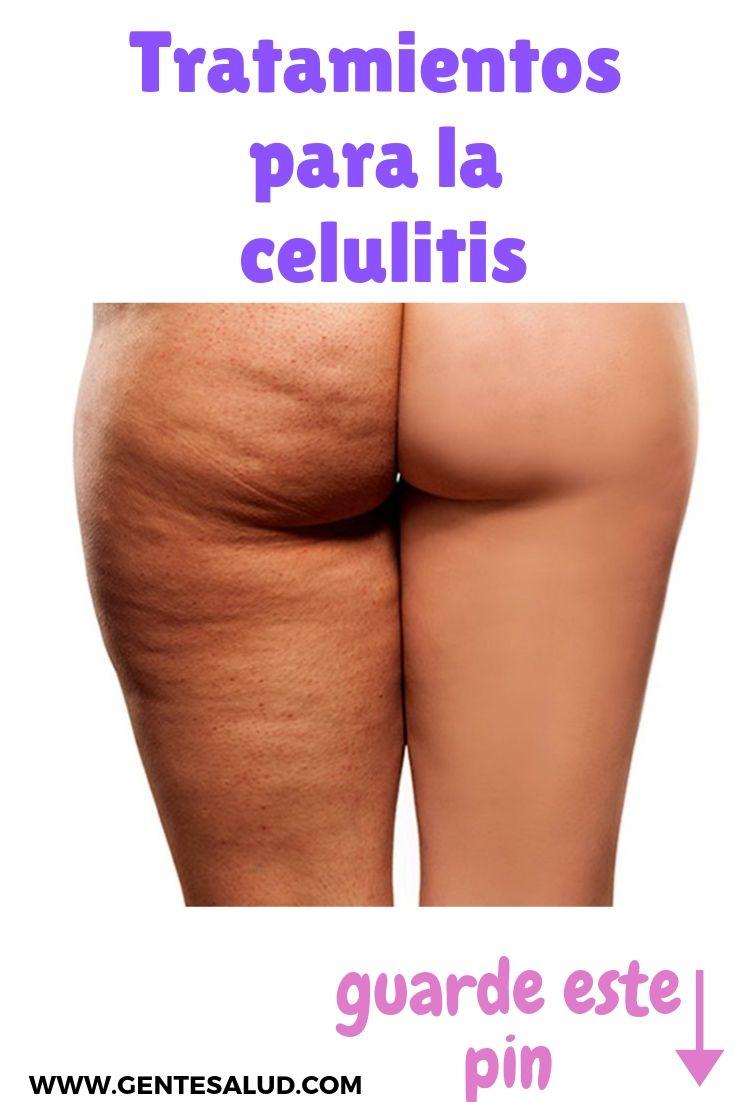 Celulitis en la cara remedios caseros
