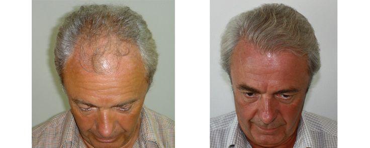 Greffe de cheveux FUE New DENSE | Challeng'Hair Paris