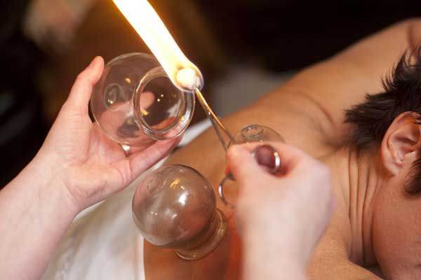 Cupping Therapy: Types, Benefits & Adverse effect