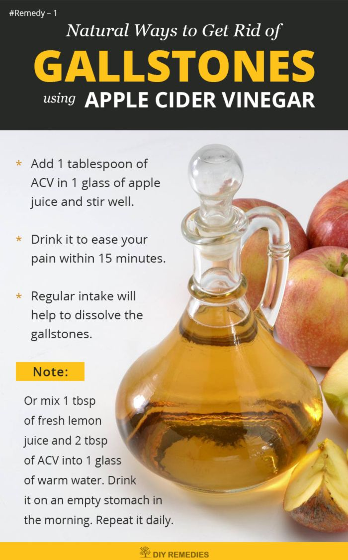 Apple Cider Vinegar Remedies for Gallstones Apple cider vinegar (ACV) has malic and other acids that help to soften up the gallstones and remove it from the bladder. #Gallstones #ACV #AppleCiderVinegarforGallstones #DIYRemedies