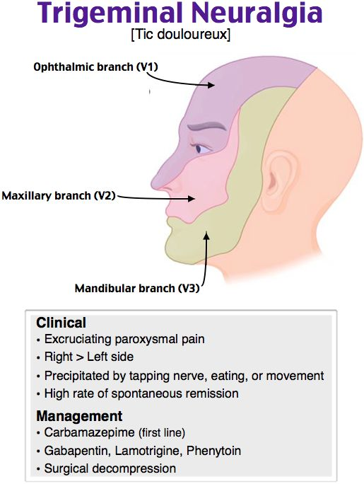 You facial pain of left side helpful information