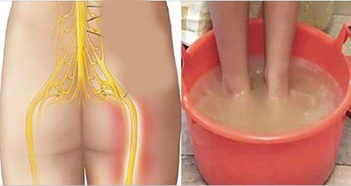 Vyliečte bolesť sedacieho nervu za 10 minút použitím prirodzenej metódy, ktorá je naozaj veľmi účinná | MegaZdravie.sk