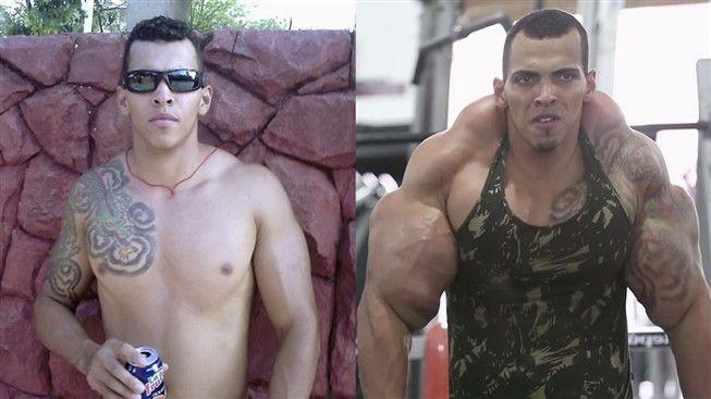 Tentou imitar o Incrível Hulk mas quase perdeu os braços
