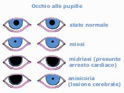 Attenzione alle Pupille