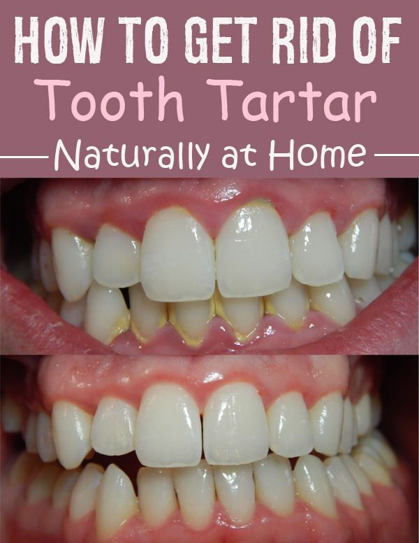 Removing Tartar Usually Required A Visit To Your Dentist