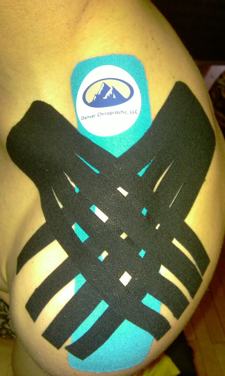 Shoulder sprain/strain - lymph correction with stability correction. http://www.denvercoloradochiropractic.com/kinesio-taping-in-denver/  Denver Chiropractic, LLC  3890 Federal Blvd Unit 1  Denver, CO 80211    303-455-2225