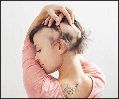 Image result for alopecia woman