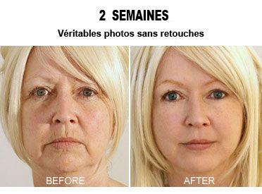 Une mère de famille découvre une astuce à 3.95€ pour effacer toutes les rides de son visage- Résultats en 14 jours!