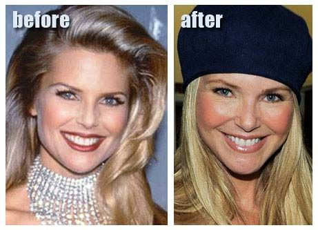 hunter tylo plastic surgery before after   Christie Brinkley Plastic Surgery For Facelift