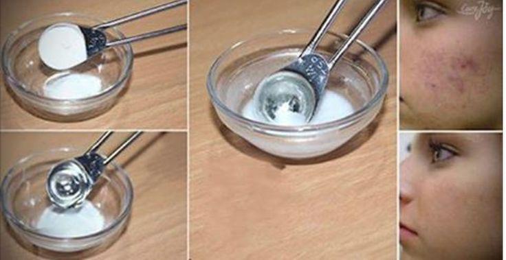 Máscara de bicarbonato e vinagre de maçã: uma receita fácil para você eliminar todas as manchas e cicatrizes do seu rosto! | Cura pela Natureza