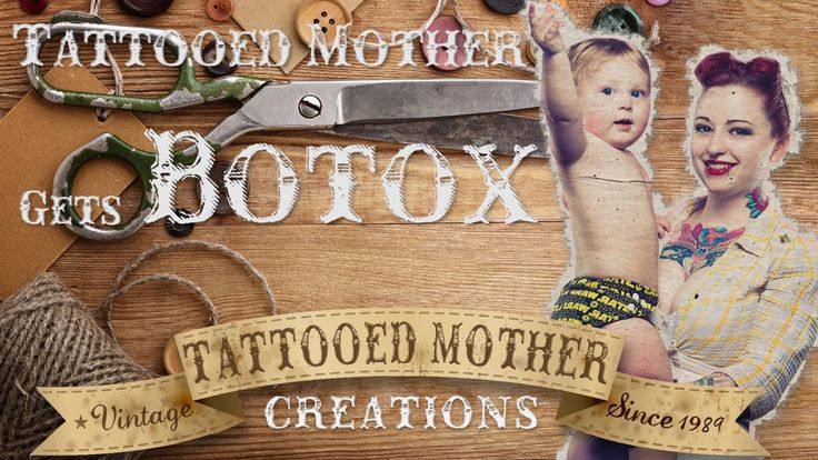What it's like to get botox shots for migraines.   Tattooed Mother gets Botox