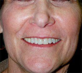 Laserbehandeling bij Pigmentvlekken : een egale huid, zonder pigmentvlekken