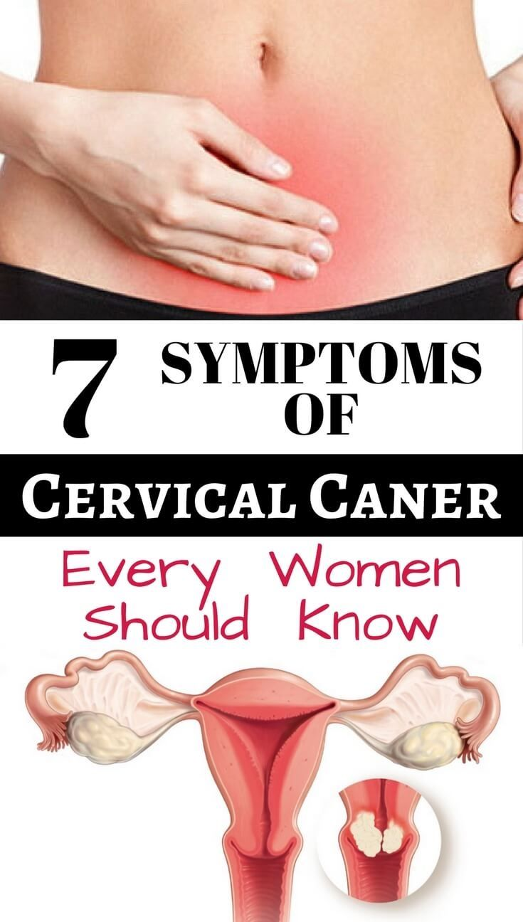 Cervical cancer symptoms every women should know.