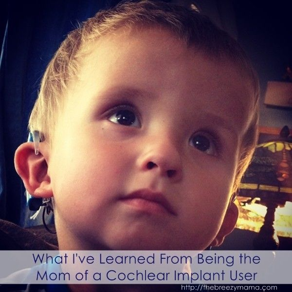 the controversy of cochlear implants Cochlear implants have been controversial in deaf culture — how would one  change my son.