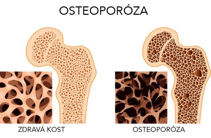 Konečně se našel lék na osteoporózu!