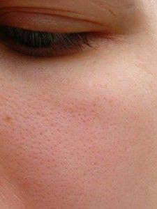 Cerrar los poros abiertos de la Cara Los poros abiertos de la cara pueden hacer que las impurezas y bacterias queden atrapadas en la piel, dando lugar a la aparición del acné y los quistes en la ca...