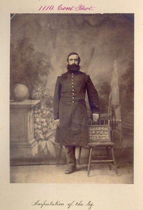 Portraits de vétérans blessés durant la guerre de Sécession   portraits de veterans blesses amputes durant la guerre de secession 9