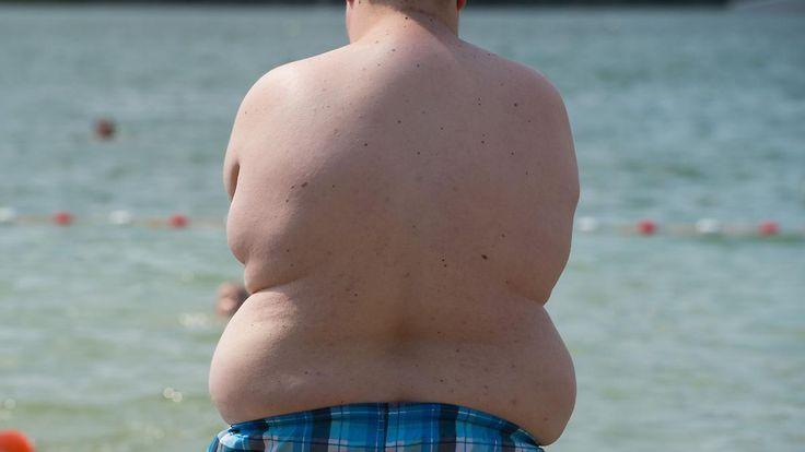 DAK-Studie: Die Meinung über Dicke: Fettleibige werden von der Gesellschaft ausgegrenzt