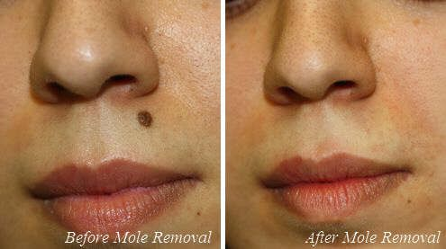 Amazing before & after mole removal treatment results!