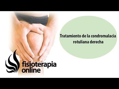 Tratamiento de la condromalacia rotuliana derecha - YouTube