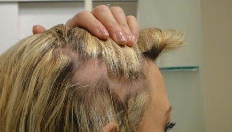 traction_alopecia_caused_by_hair_clipin_diane_shawe