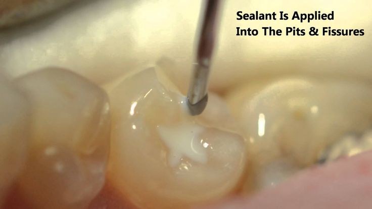 Best images about dental sealants on pinterest