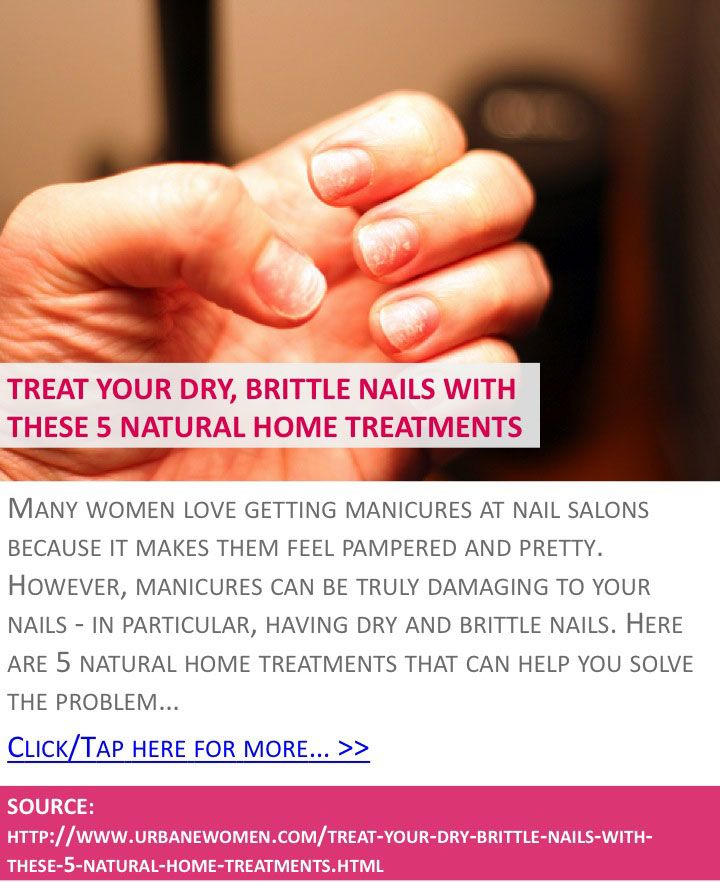 Treat Your Dry, Brittle Nails With These 5 Natural Home ...