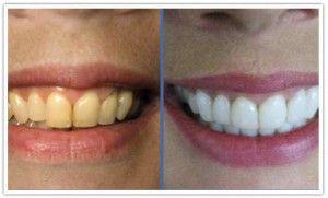 Fast Teeth Whitening
