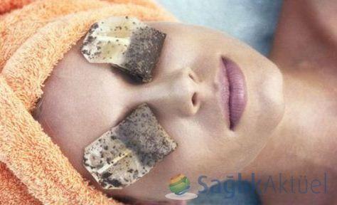 Şekersiz çayla pansuman 'batma' şikayetlerini azaltıyor