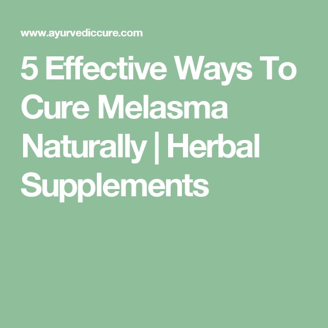 5 Effective Ways To Cure Melasma Naturally | Herbal Supplements