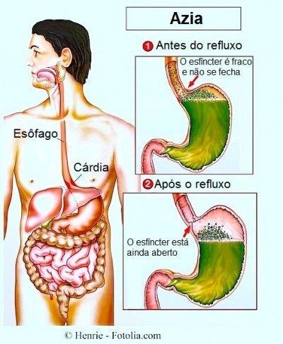 Azia, refluxo, esofagite
