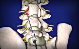 Radiofrequency Neurotomy | Spinal Arthritis or Facet Pain Treatment