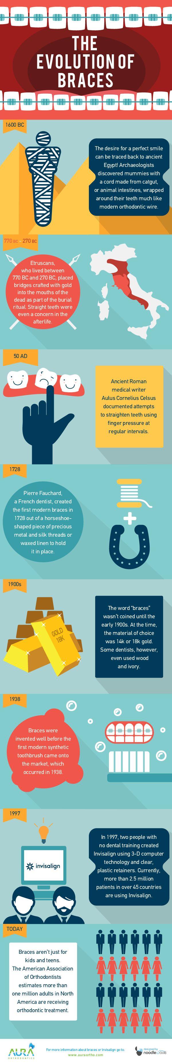The Evolution of Braces - Infographic   Aura Orthodontics Surrey http://www.auraortho.com #braces #orthodontist #orthodontics