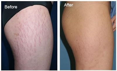 Remove Stretch Marks In Your Home