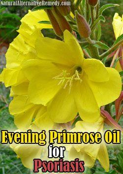 Using Evening Primrose Oil for Psoriasis | Natural Alternative Remedy #health #psoriasis