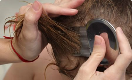Causes Of Getting A Lice