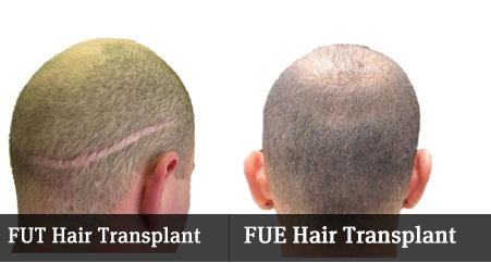 FUE or FUT? Choosing the Best Hair Transplant Method