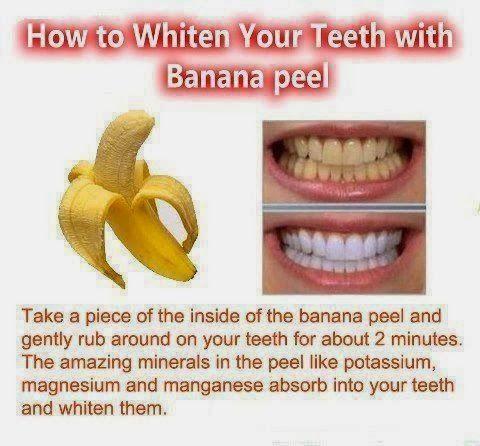 Tome un pedazo de la parte interior de la cáscara de plátano y frote suavemente alrededor de los dientes durante unos 2 minutos. Los minerales increíbles en la piel como el potasio, el magnesio y el manganeso son absorbidos por los dientes y los blanquea.! Un pequeño truco fantástico para tener en cuenta! Remedios naturales no medicinal!