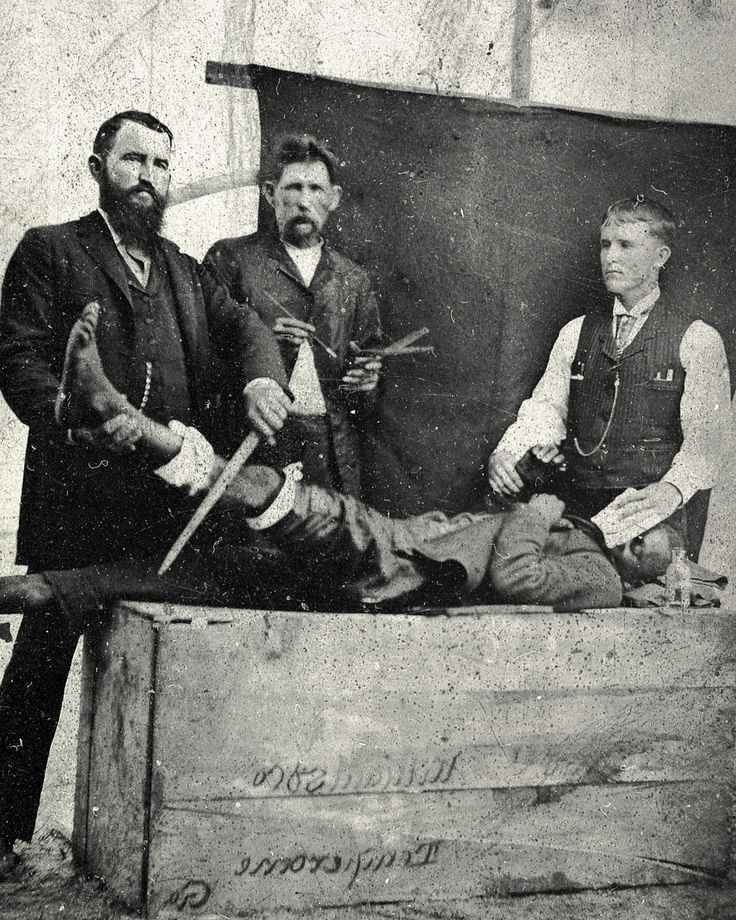 Ether. The photographic image, probably made between 1855 and 1860, was staged to portray Dr. Crawford Long's original discovery and use of anesthesia. The image shows a surgeon ostensibly preparing to amputate, an anesthetist monitoring the patient's pulse and administering ether on a cloth, and an assistant standing by with instruments.