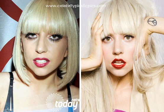Celebrity Lady Gaga Before After Plastic Surgery - http://www.celeb-surgery.com/celebrity-lady-gaga-before-after-plastic-surgery/?Pinterest