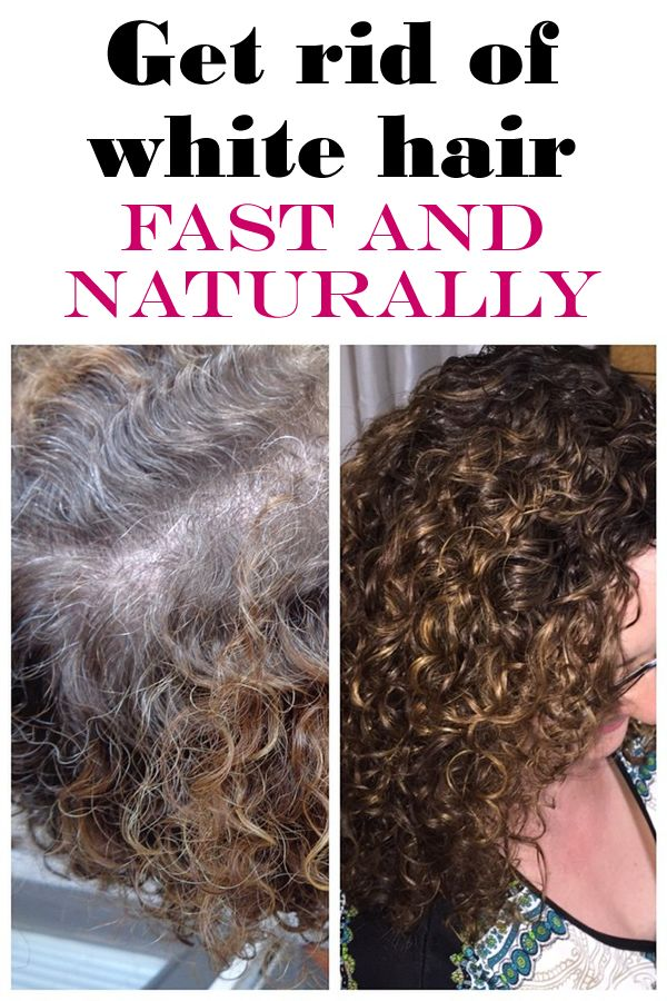 42 Best Natural Remedies For Grey Hair Images On Pinterest Beauty