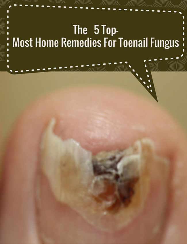 The 5 Top-Most Home Remedies For Toenail Fungus