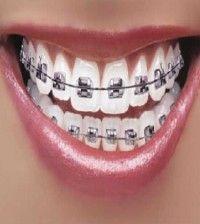 #DeClinic #ortodonta_warszawa #ortodoncja_warszawa #aparat_staly #aparat_na_zeby