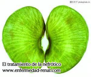 El trasplante de riñón es una opción de tratamiento para los pacientes cuyo ambos riñones no funcione.El trasplante de riñón es una opción de tratamiento para los pacientes cuyo ambos riñones no funcione