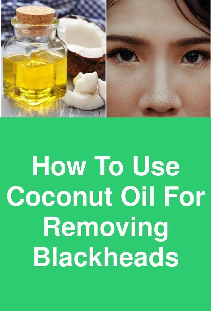 How To Use Coconut Oil For Removing Blackheads Bla…